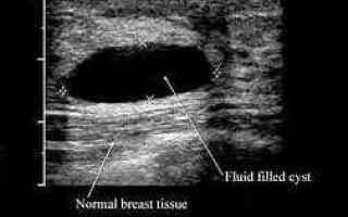 Medicina: ecografia mammaria  fibroadenoma tumore