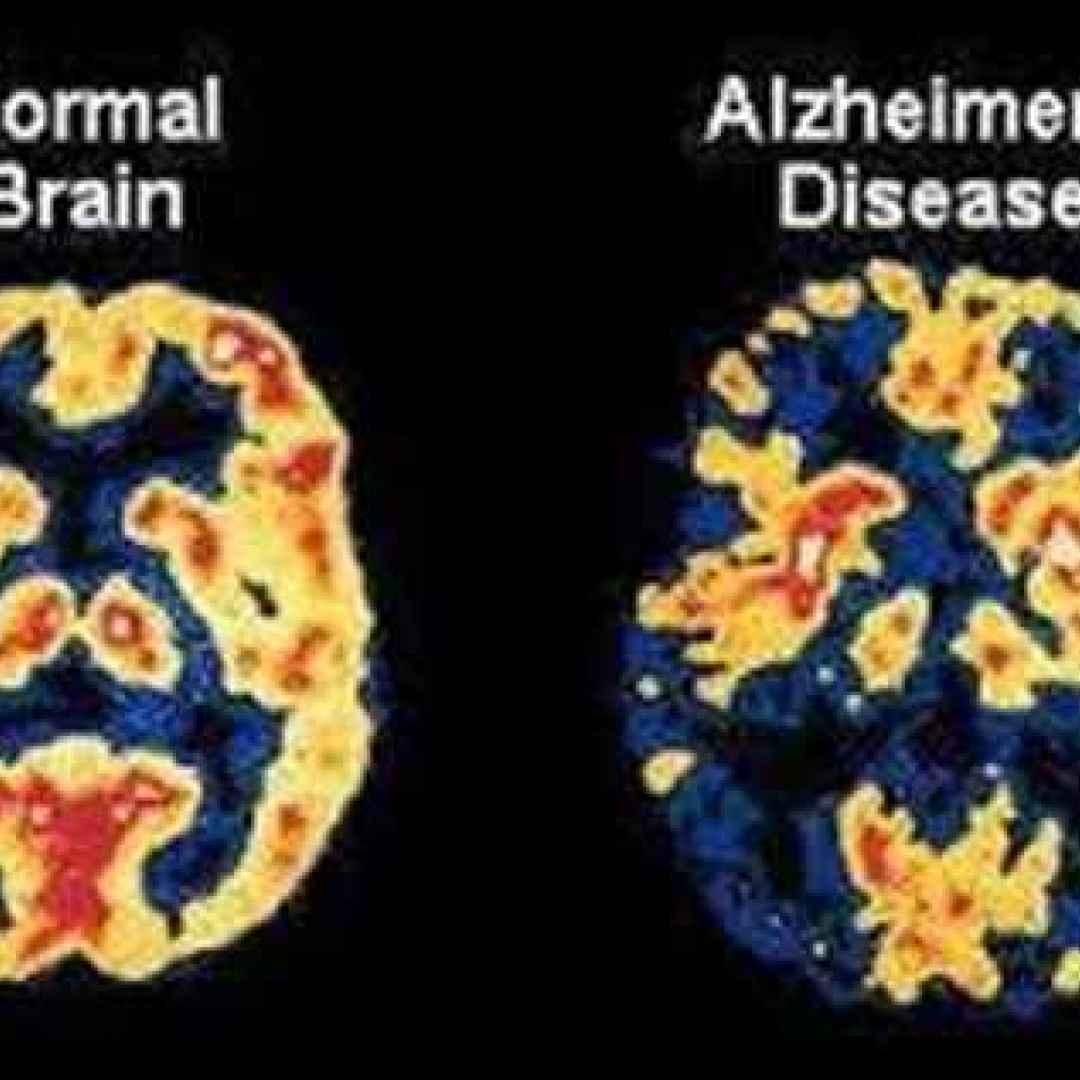 alzheimer  epilessia  chetoni