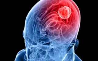 https://diggita.com/modules/auto_thumb/2017/11/22/1614386_meningite-sintomi-lazio-toscana_thumb.jpg