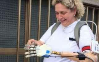 Medicina: mano  bionica  impianto  tatto