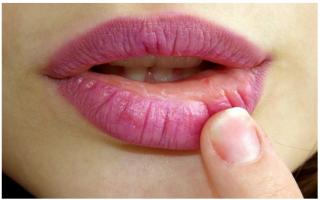 Bellezza: salute  labbra  screpolate  rimedi naturali  labbra screpolate