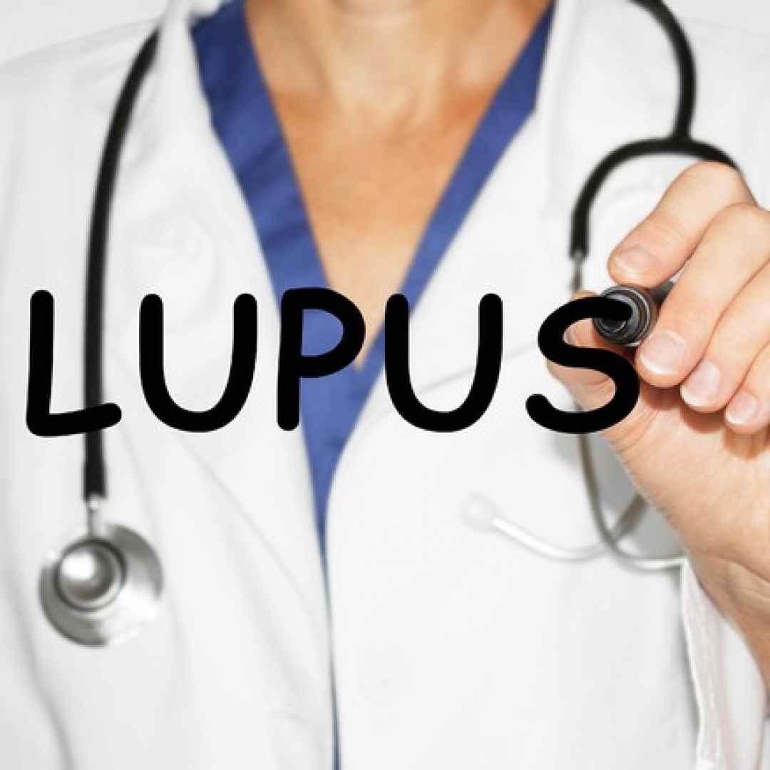 malattie autoimmuni  lupus  depressione