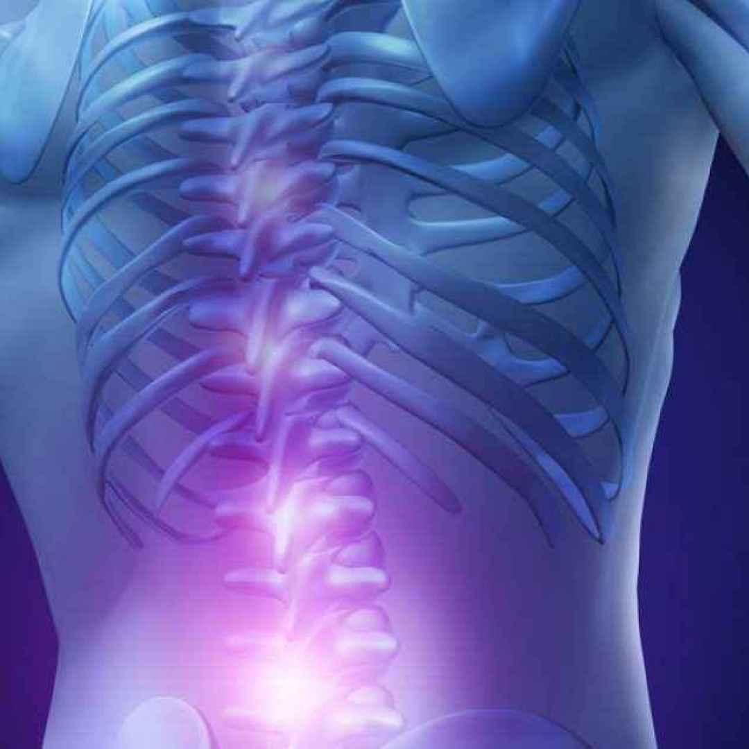 Disco scivolato nel trattamento della schiena lombare, i sintomi...