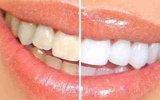 Lo sbiancamento dei denti in ambulatorio prevede lutilizzo di un gel contenente Perossido d'Idroge