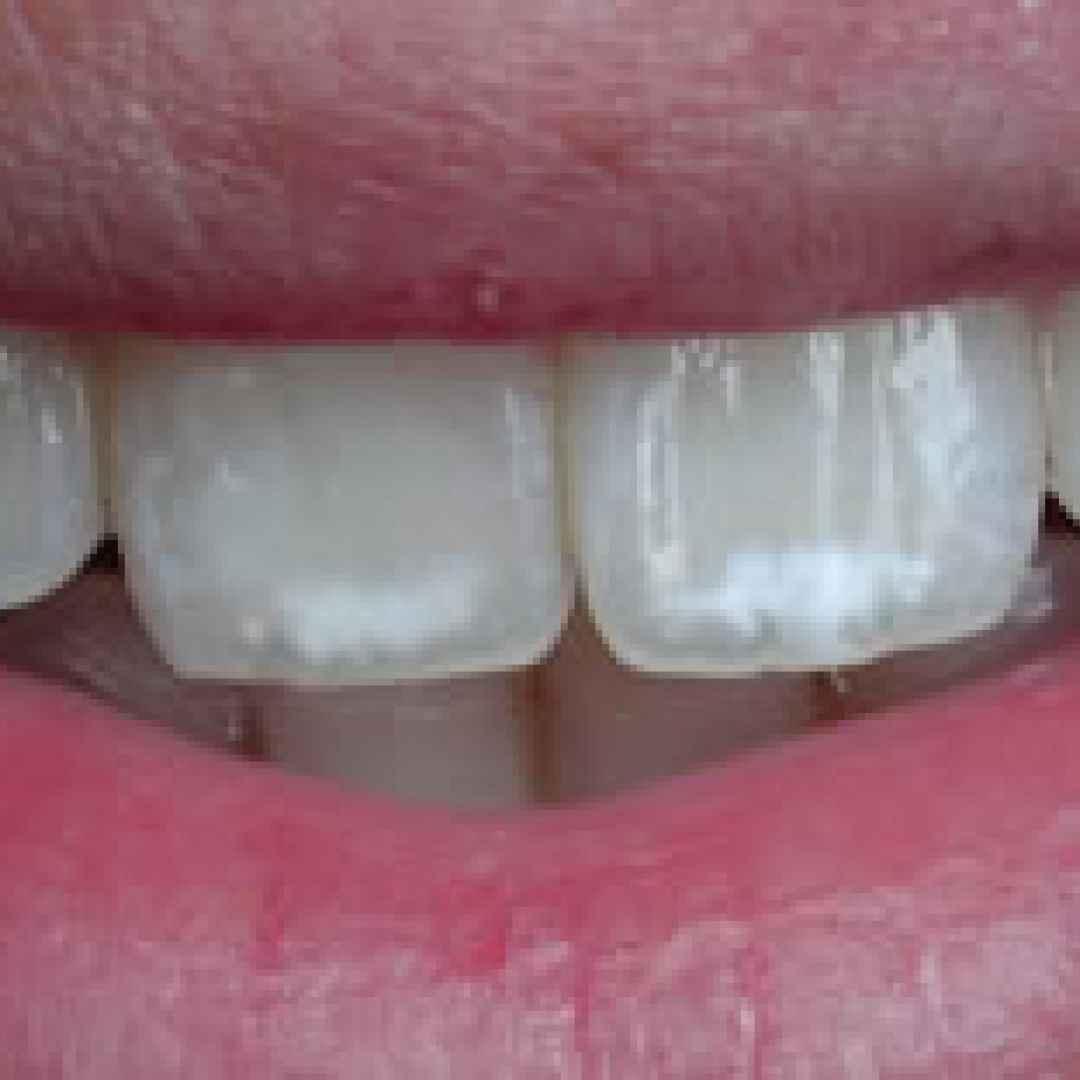 fluorosi  denti  macchie  bianche
