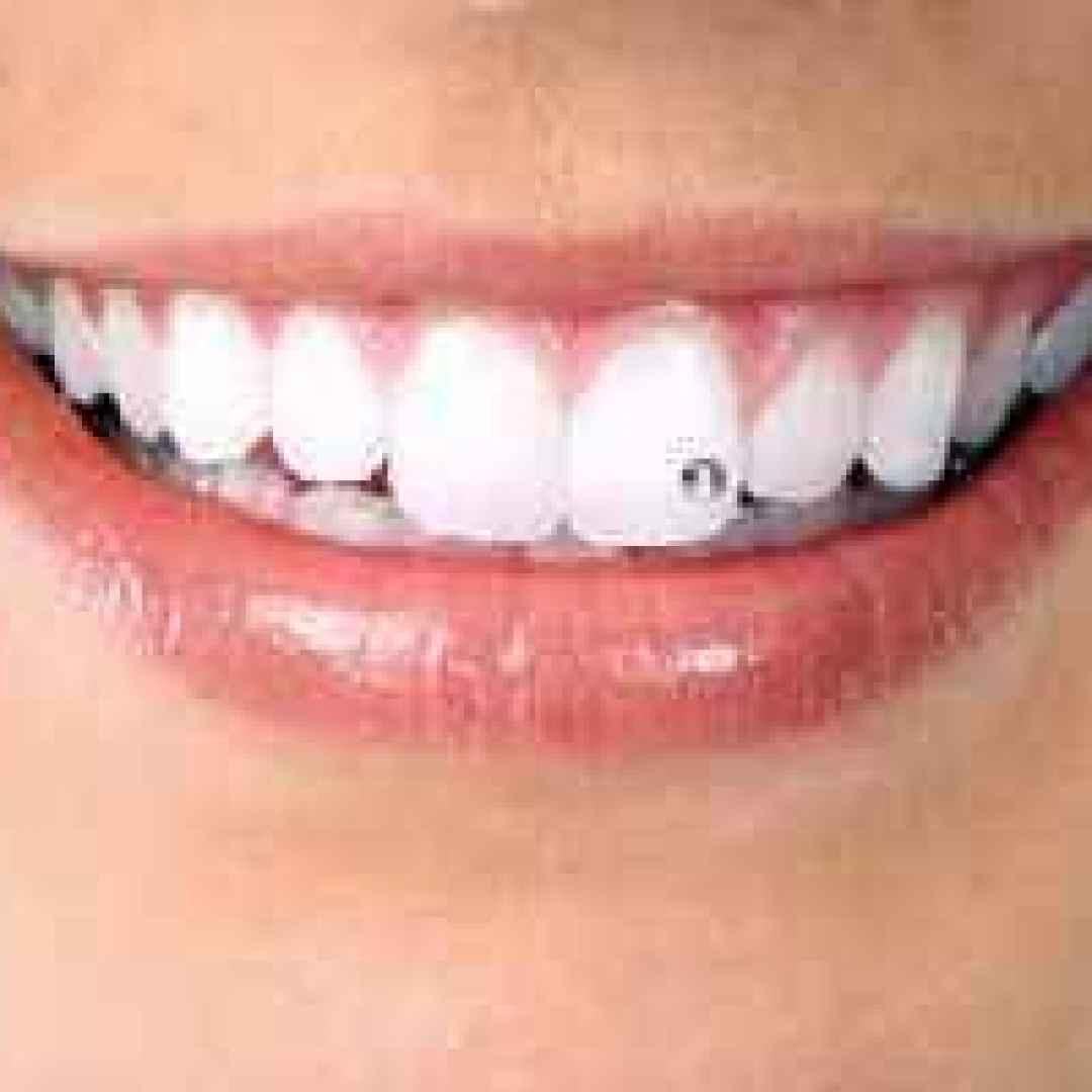 brillantino brillante dente denti