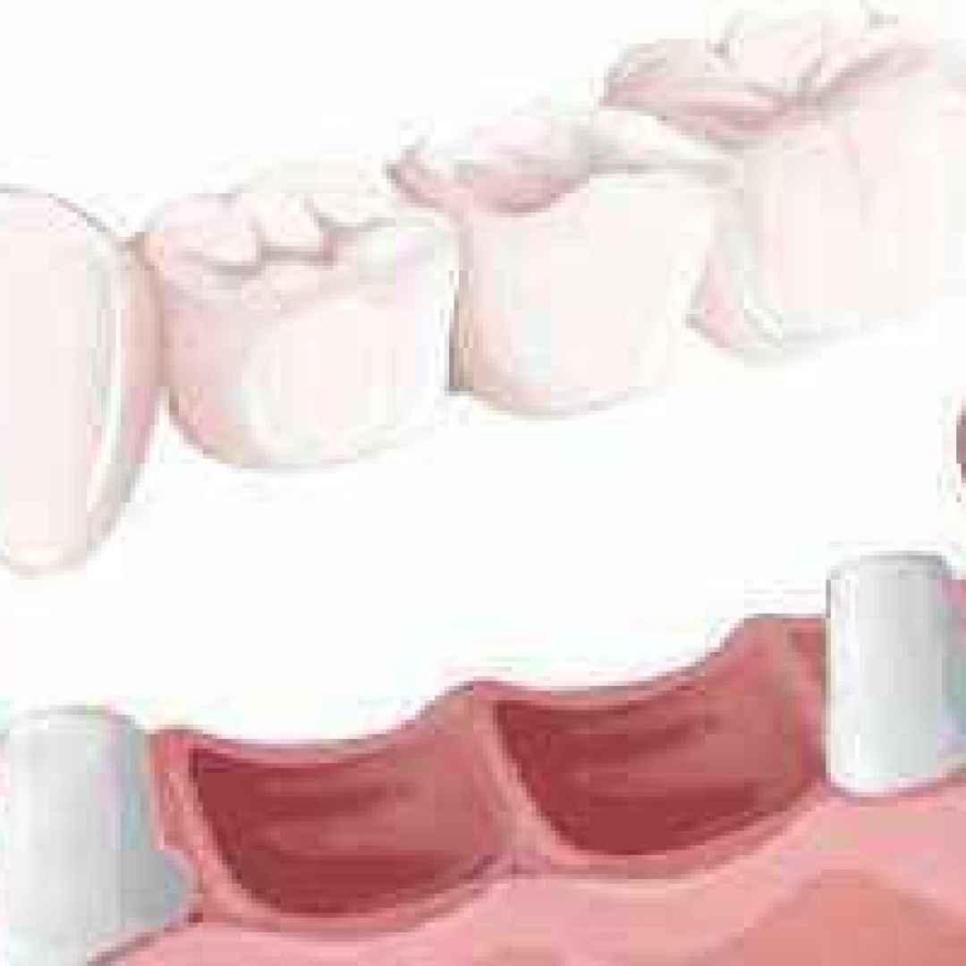 roma  protesi  dentaria  fissa