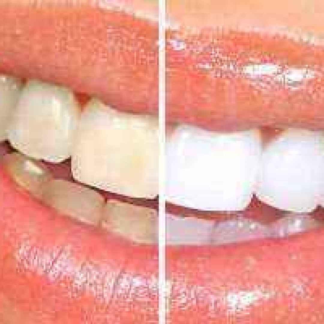 sbiancamento  denti  dentista  roma