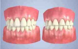 vai all'articolo completo su denti