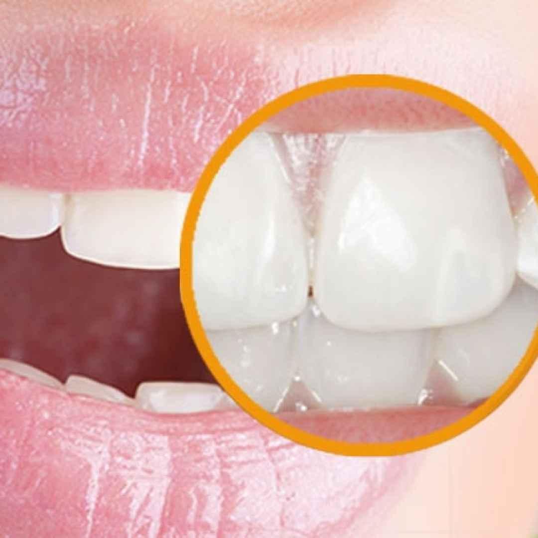macchie bianche  denti  fluorosi
