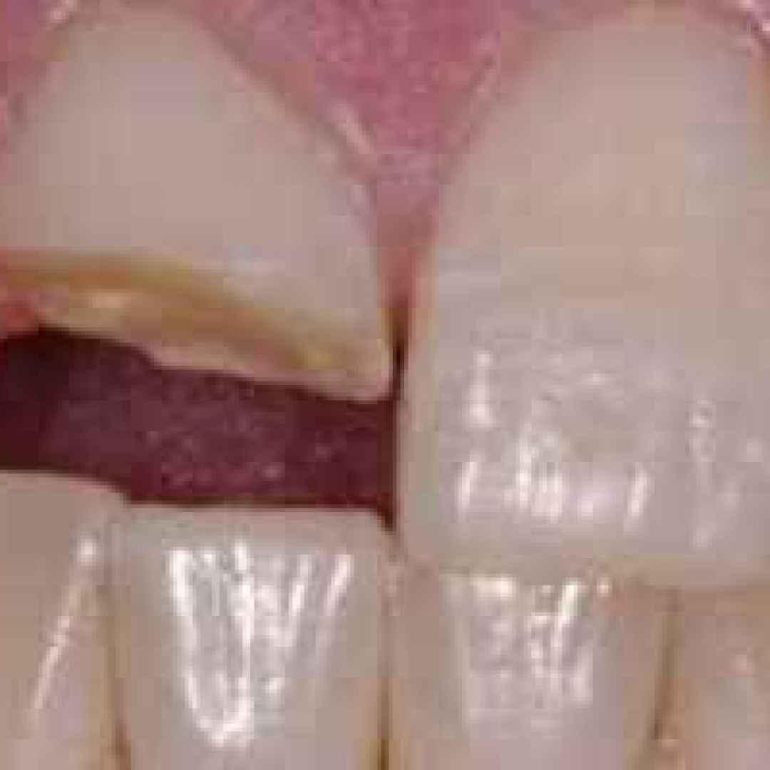 ricostruzione  dente  roma