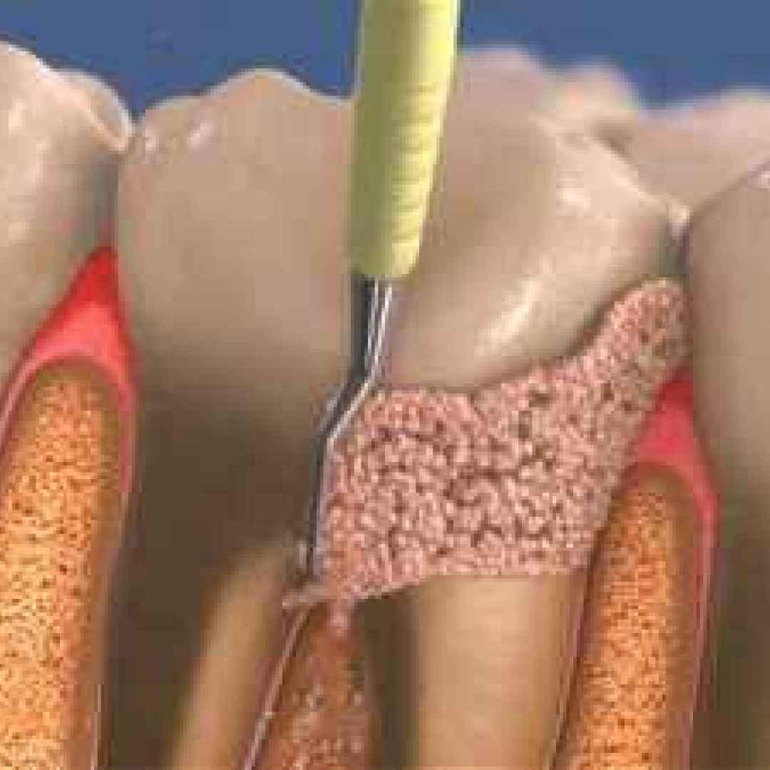 ablazione  tartaro  pulizia  denti