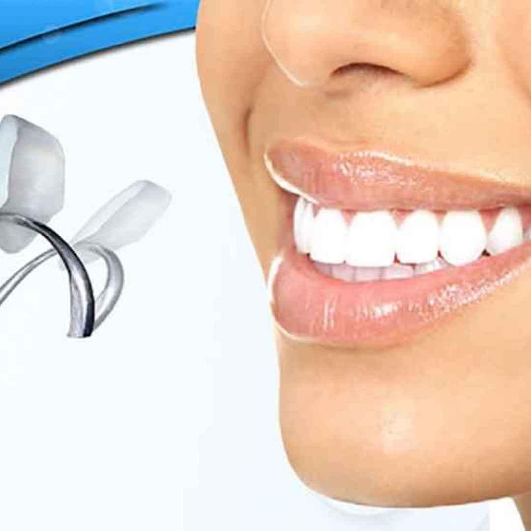 faccette  dentali  lumineers  cerinate
