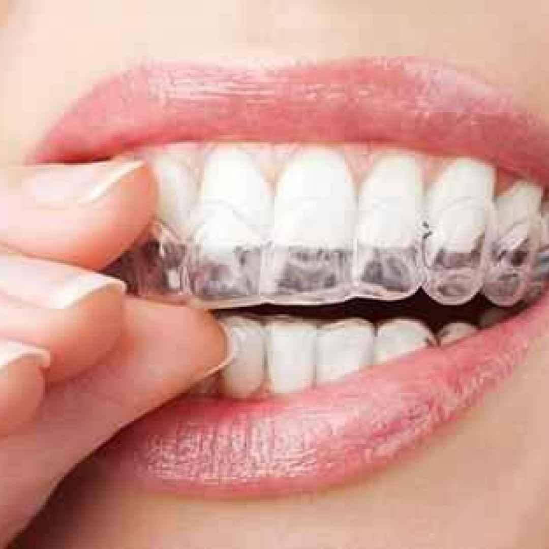 apparecchio  trasparente  denti  roma