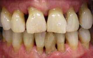 Medicina: parodontite  piorrea  cura  terapia  cos