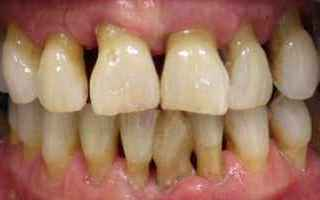 parodontite  piorrea  cura  terapia  cos
