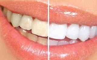 sbiancamento denti  estetica  roma