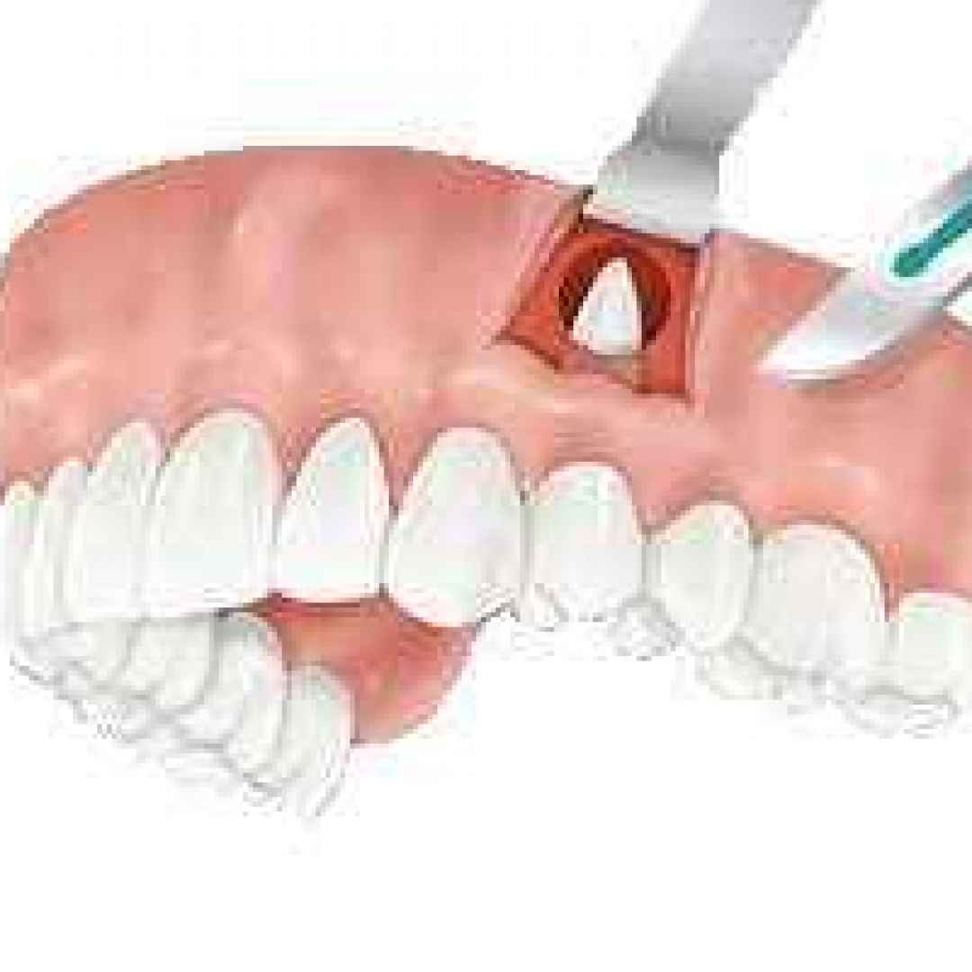 apicetomia estrazione chirurgia dente