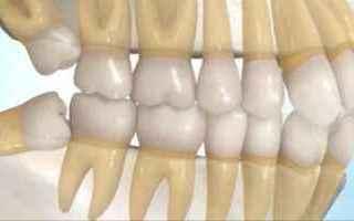 denti giudizio estrazione quando dente