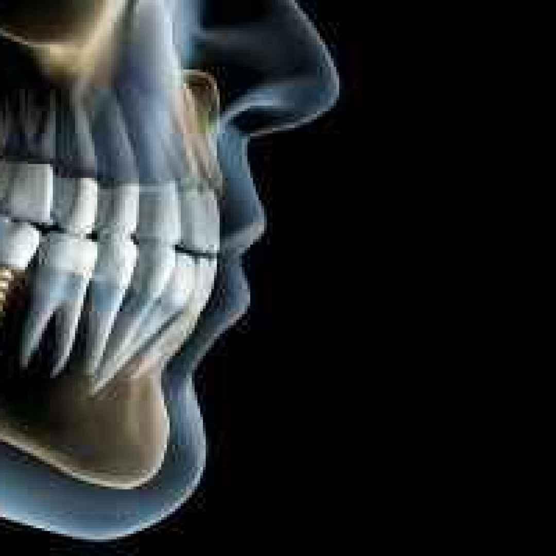 impianto dentale prezzo costo roma