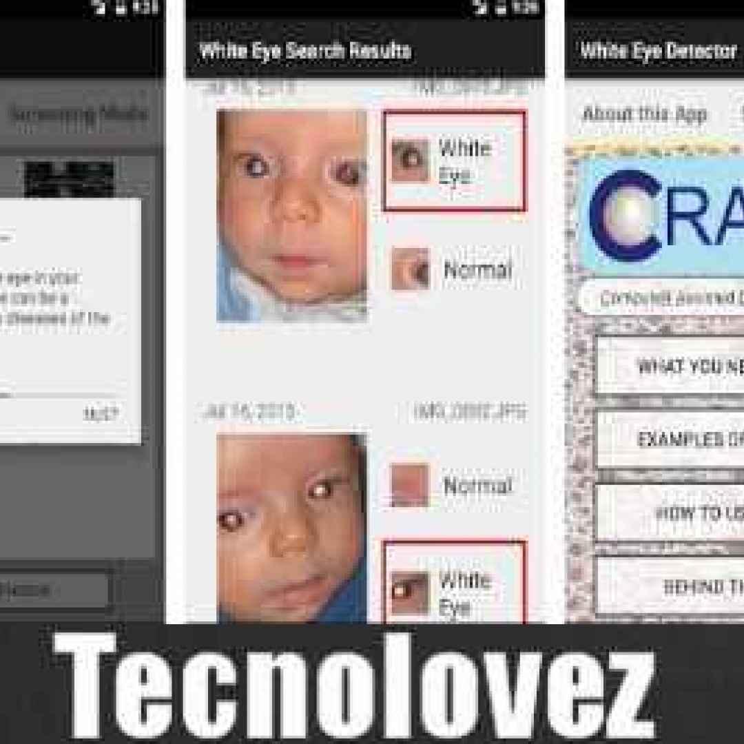 (Cradle) Applicazione che riconosce malattie oculari attraverso una semplice foto